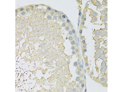 SLC2A9 Polyclonal Antibody
