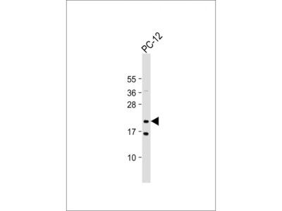 NRAS Antibody