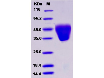 Recombinant Human KCT2 / C5orf15 Protein (His tag)