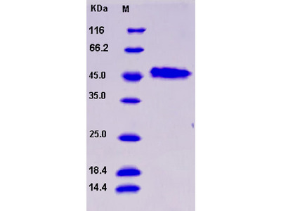 Recombinant Human GAP43 / Neuromodulin Protein (His tag)