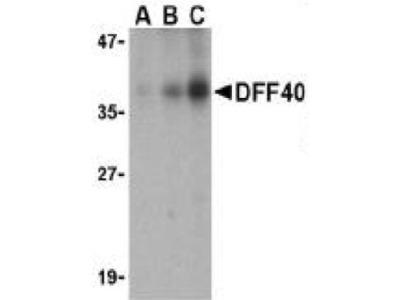 Anti-CAD antibody