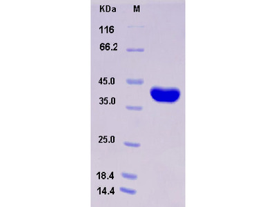 Recombinant Human AKR1A1 Protein (His tag)
