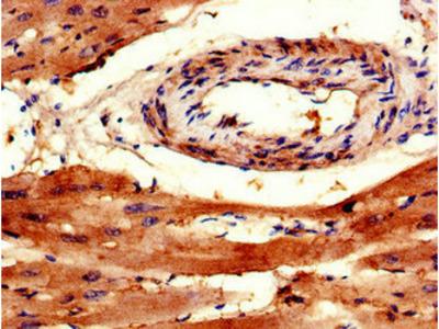 TRAPPC9 Antibody