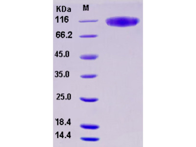 Recombinant Human SerpinG1 / C1 inhibitor / C1IN Protein (His tag)