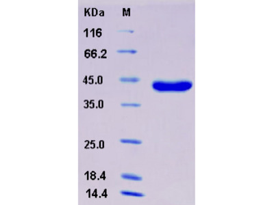 Recombinant Mouse Osteonectin / SPARC Protein (His tag)