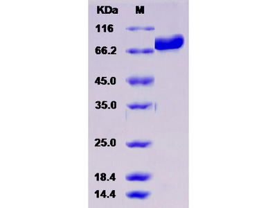 Recombinant Human DBH / Dopamine beta-Hydroxylase Protein (His tag)