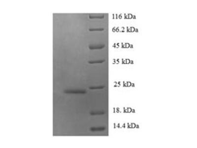 Recombinant Human C-C motif chemokine 14