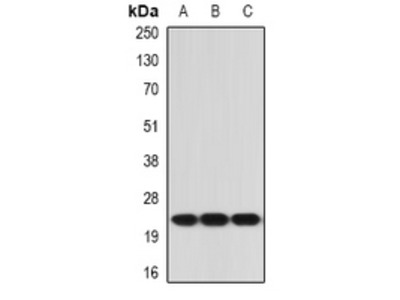 Anti-IL-21 Antibody