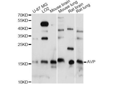 AVP Polyclonal Antibody
