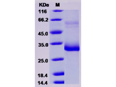 Mouse MBL-2 / MBL Protein (His Tag)