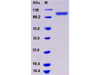 Recombinant Human MEP1A / PPHA Protein (His tag)