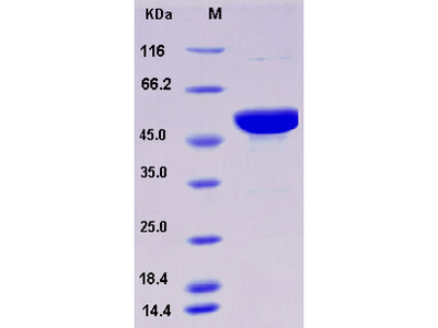 Recombinant Mouse S100A15 / S100A7A Protein (His & MBP tag)