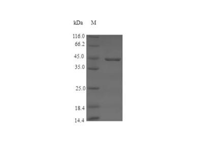 Recombinant Pig Coagulation factor XII (F12)