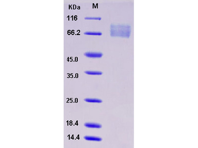 Recombinant Mouse ADAM15 / MDC15 Protein (His tag)