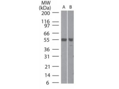 Anti-TRAF6 antibody