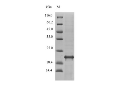 Recombinant Vibrio vulnificus Fe/S biogenesis protein NfuA (nfuA)