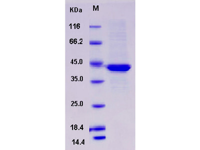 Recombinant Mouse Serpinb6b Protein (His tag)