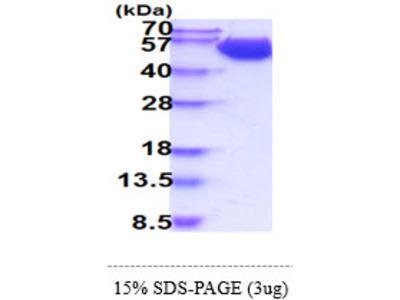 SLC3A2, 206-630aa, Human, His-tag, Baculovirus