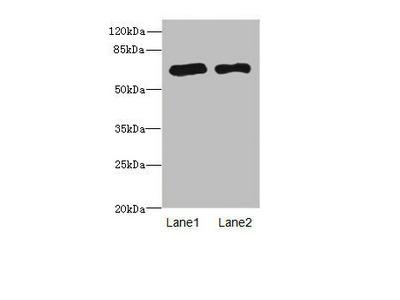 PPM1D Antibody