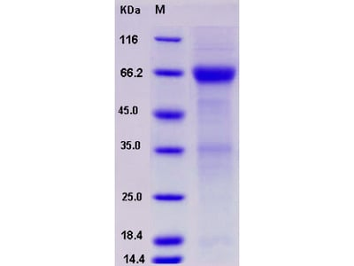 Recombinant Human ADCYAP1R1 Protein (Fc tag)