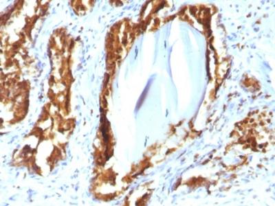 PSAP Antibody / Prostate Specific Acid Phosphatase (Recombinant Mouse Monoclonal)
