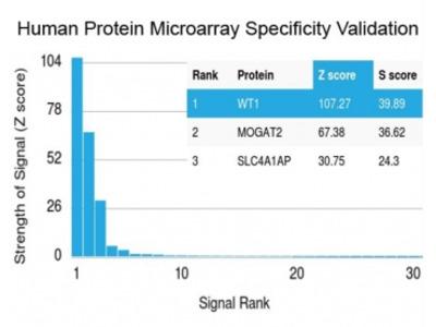 WT1 Antibody / Wilms Tumor 1 (Protein Microarray-Validated Recombinant Monoclonal)