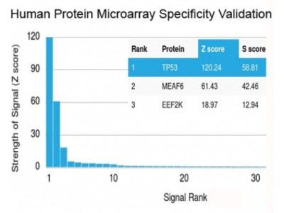 p53 Antibody / N-Terminal Region (Protein Microarray-Validated Recombinant Monoclonal)