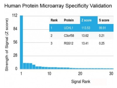 PGP9.5 / UchL1 Antibody (Protein Microarray-Validated Recombinant Monoclonal)