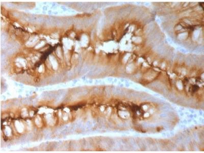 CEA Antibody / Carcinoembryonic Antigen (Recombinant Rabbit Monoclonal)