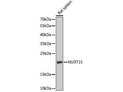 NUDT15 Polyclonal Antibody