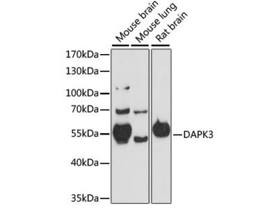 DAPK3 Polyclonal Antibody