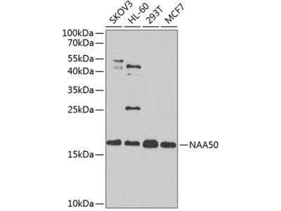 NAA50 Polyclonal Antibody