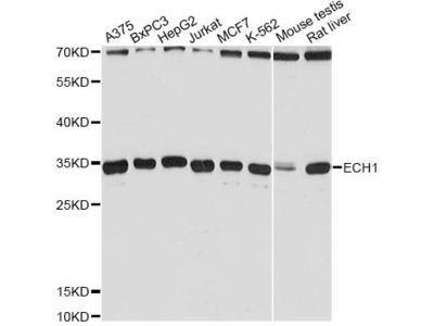 ECH1 Polyclonal Antibody