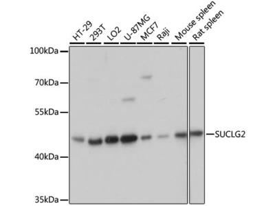 SUCLG2 Polyclonal Antibody