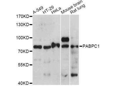 PABPC1 Polyclonal Antibody