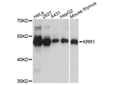 KRR1 Polyclonal Antibody