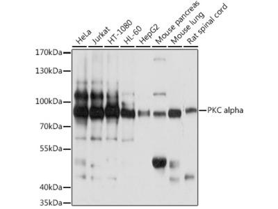 PRKCA Polyclonal Antibody