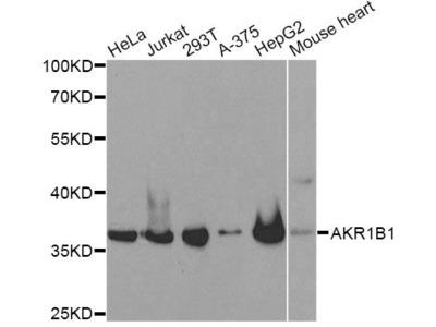 AKR1B1 Polyclonal Antibody