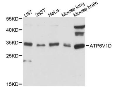 ATP6V1D Polyclonal Antibody