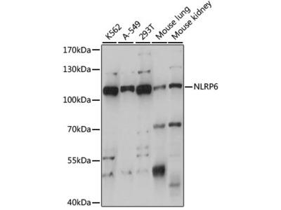 NLRP6 Polyclonal Antibody