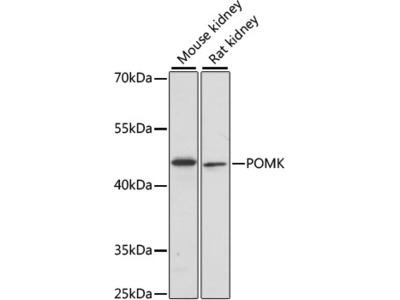POMK Polyclonal Antibody