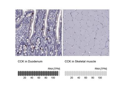 Cholecystokinin Antibody