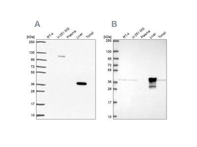 alcohol dehydrogenase 6 Antibody