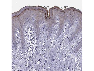 Loricrin Antibody