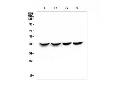 Anti-Cardiac Troponin T/TNNT2 Picoband Antibody