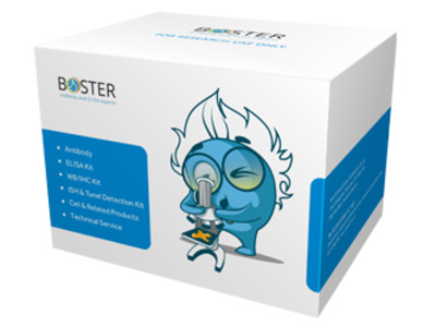 Human Helicobacter pylori IgA ELISA Kit (Direct EIA) (H. pylori)