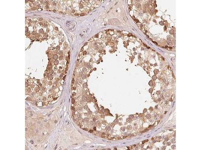 Anti-PARK2 Antibody