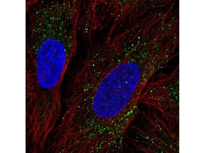 Anti-ZDHHC17 Antibody