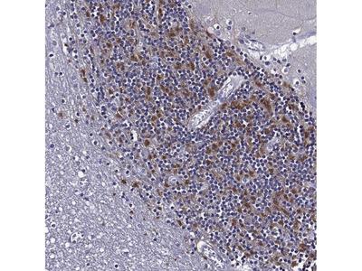 Anti-TMEM266 Antibody