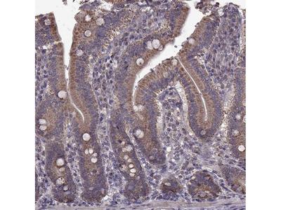 Anti-PUDP Antibody